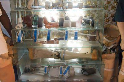 beylerbeyi konagi ortez protez odasi 400x266