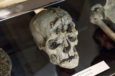 prag ulusal muze beyin tumoru 400x266