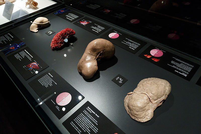 amsterdam body worlds bobrekler